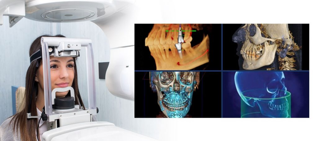 To better treat our patients' teeth, we bought the best equipment – Ct scan dental